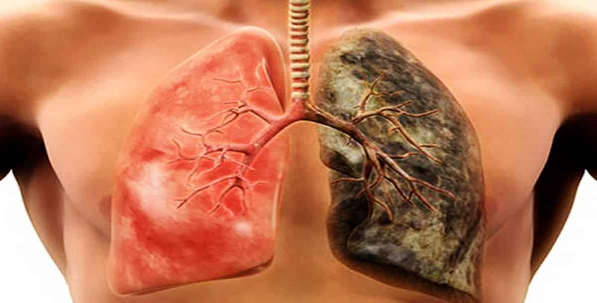 E - Cigarettes effect on lungs, on right. Compared to a healthy lung, on left, the lung effected by vaping has disease.